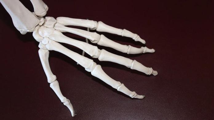 Artrite reumatoide - Ossa della mano